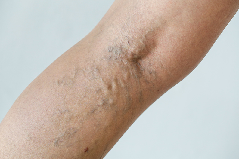 varicose-and-spider-veins-on-leg